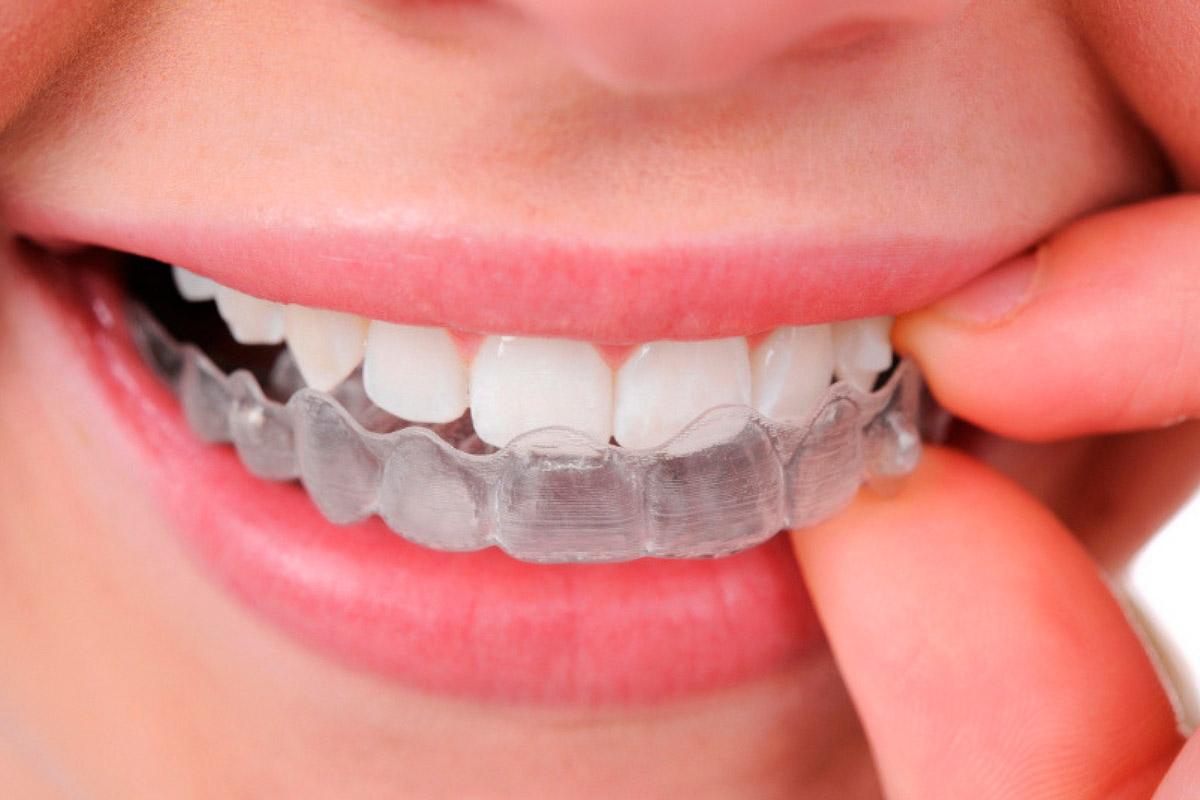 Ortodoncia invisible, también llamada Invisalign