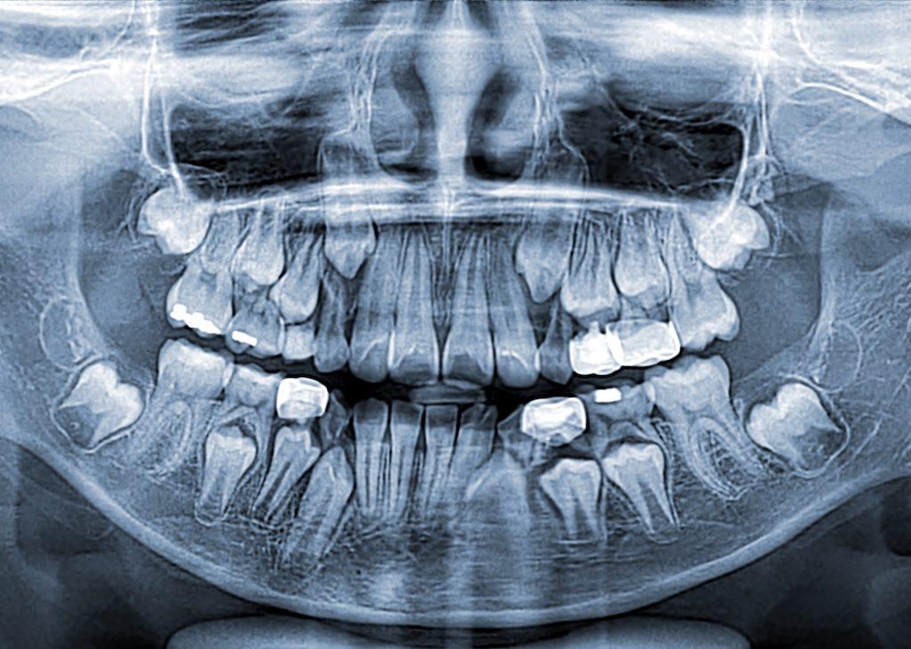 Seguridad radiografías dentales