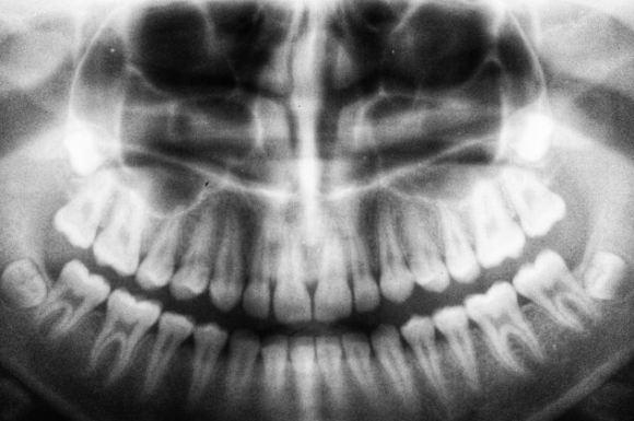 cuál es el origen de los implantes dentales