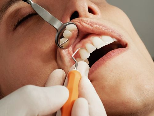 movilidad dental en periodoncia