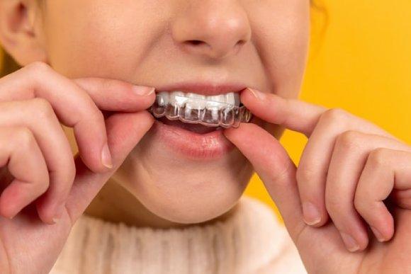 ortodoncia transparente removible