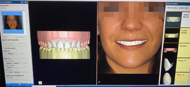 blanqueamiento dental coruña
