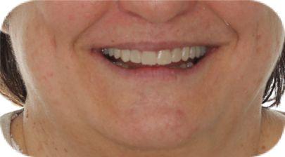 blanqueamiento dental carillas coruña