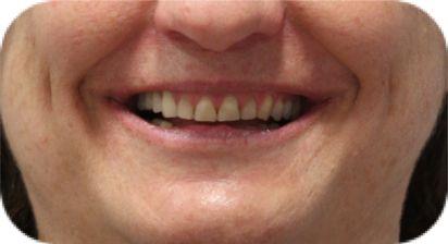estética dental en coruña