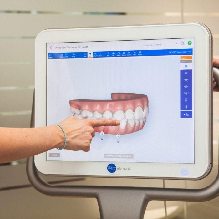 que es un escaner intraoral y ventajas